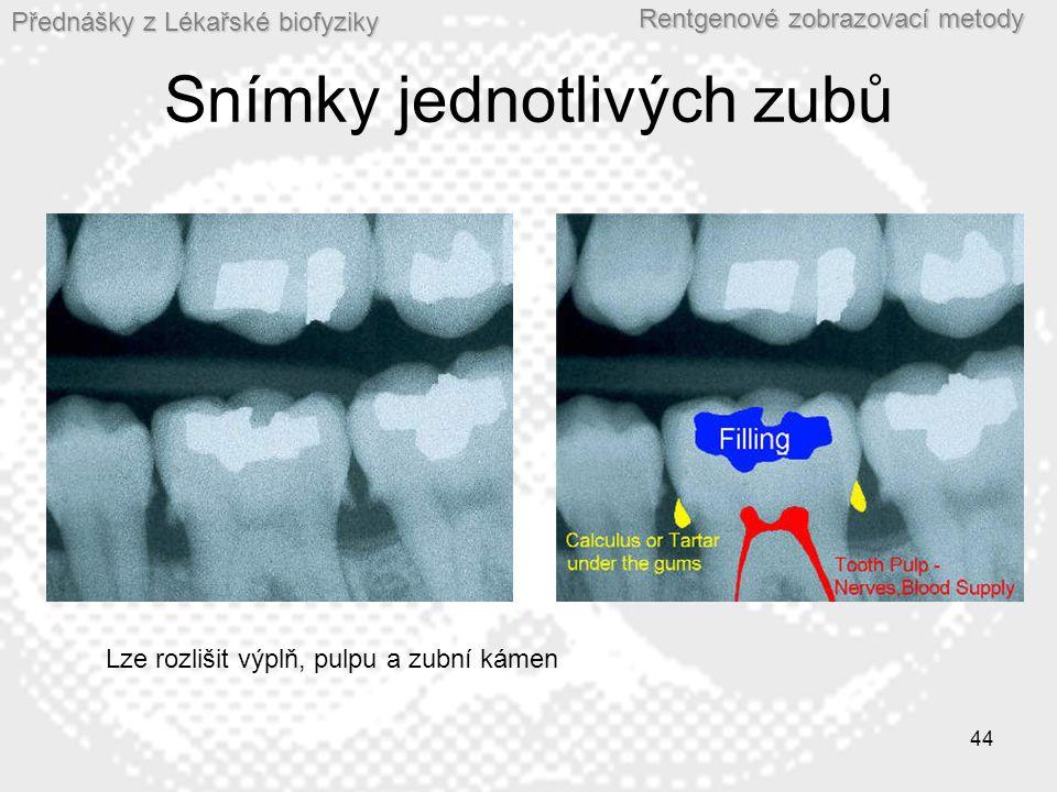 Přednášky z Lékařské biofyziky Rentgenové zobrazovací metody 44 Snímky jednotlivých zubů Lze rozlišit výplň, pulpu a zubní kámen