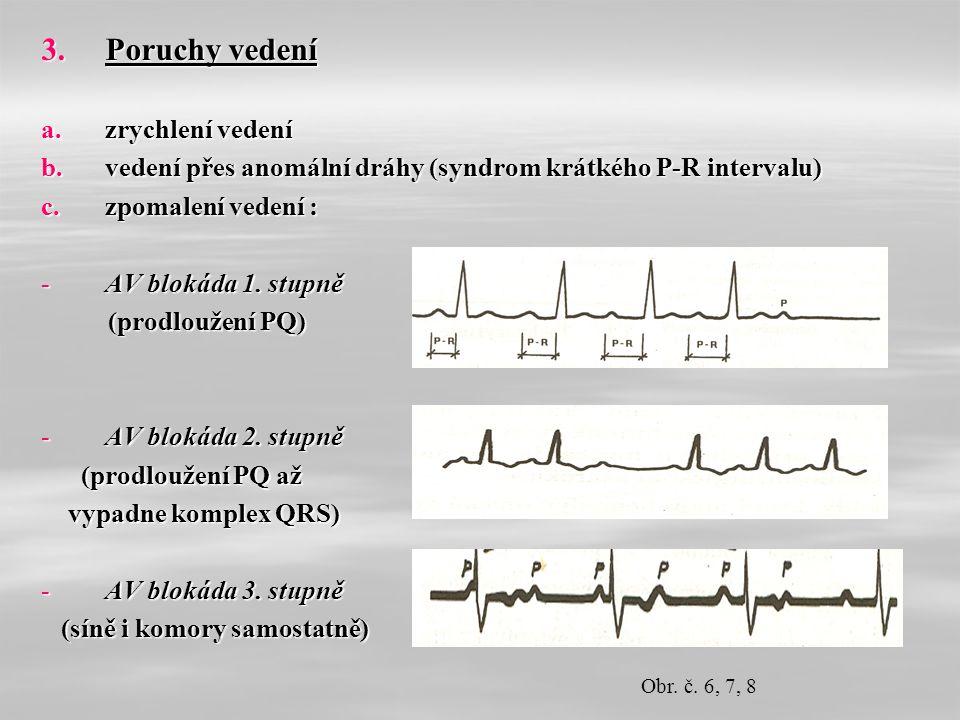 3.Poruchy vedení a.zrychlení vedení b.vedení přes anomální dráhy (syndrom krátkého P-R intervalu) c.zpomalení vedení : -AV blokáda 1.