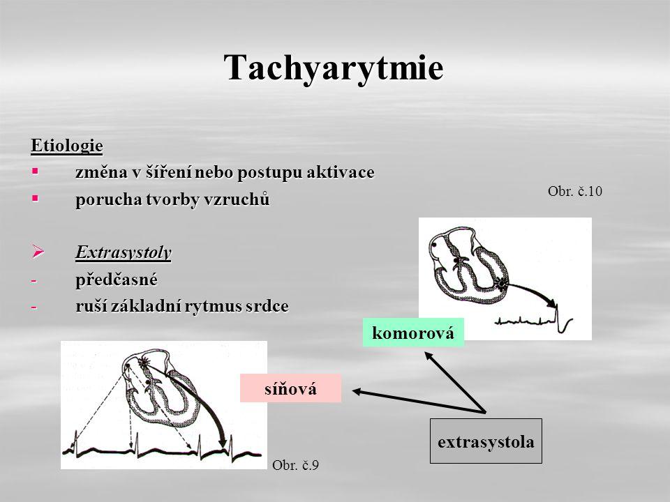 Tachyarytmie Etiologie  změna v šíření nebo postupu aktivace  porucha tvorby vzruchů  Extrasystoly -předčasné -ruší základní rytmus srdce extrasystola síňová komorová Obr.