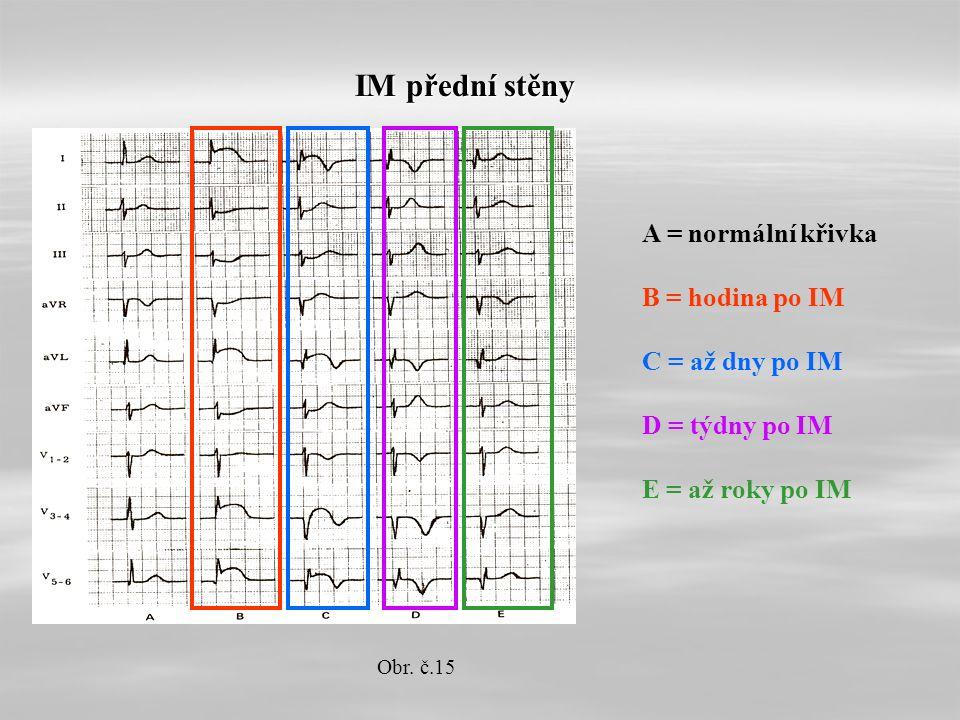 IM přední stěny A = normální křivka B = hodina po IM C = až dny po IM D = týdny po IM E = až roky po IM Obr.