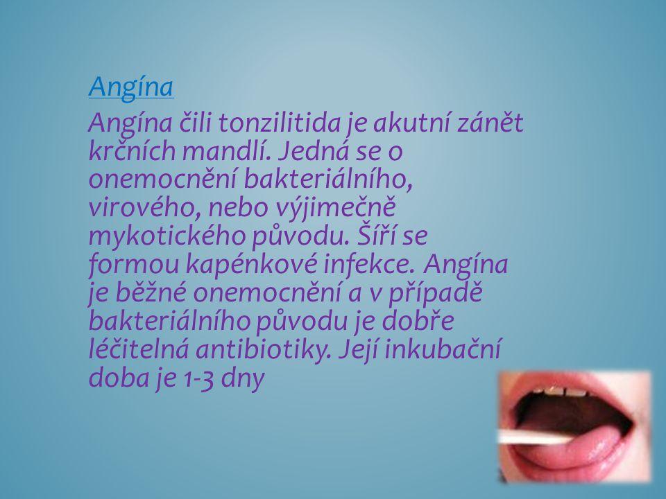 Angína Angína čili tonzilitida je akutní zánět krčních mandlí. Jedná se o onemocnění bakteriálního, virového, nebo výjimečně mykotického původu. Šíří