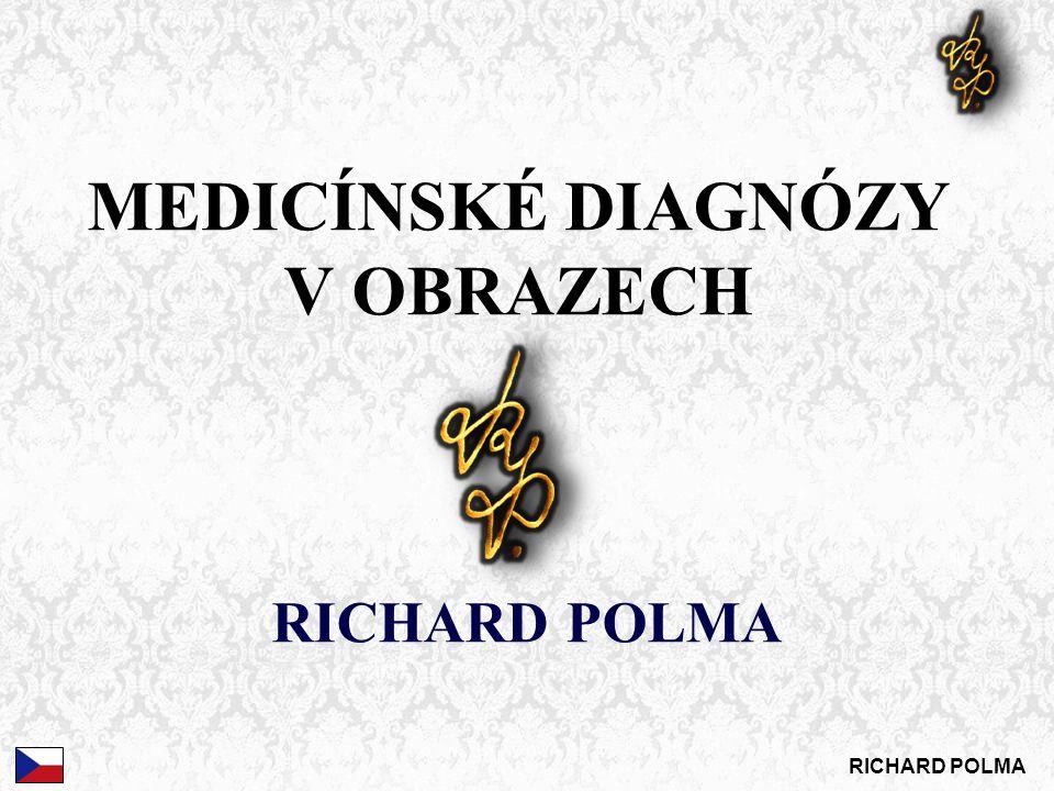 MEDICÍNSKÉ DIAGNÓZY V OBRAZECH RICHARD POLMA