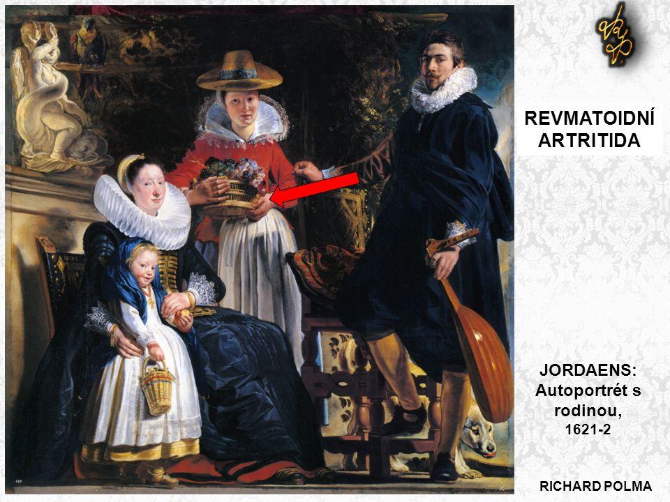 RICHARD POLMA REVMATOIDNÍ ARTRITIDA JORDAENS: Autoportrét s rodinou, 1621-2
