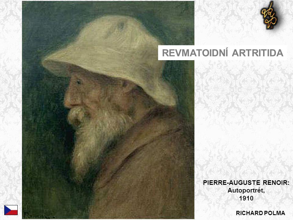 RICHARD POLMA PIERRE-AUGUSTE RENOIR: Autoportrét, 1910 REVMATOIDNÍ ARTRITIDA