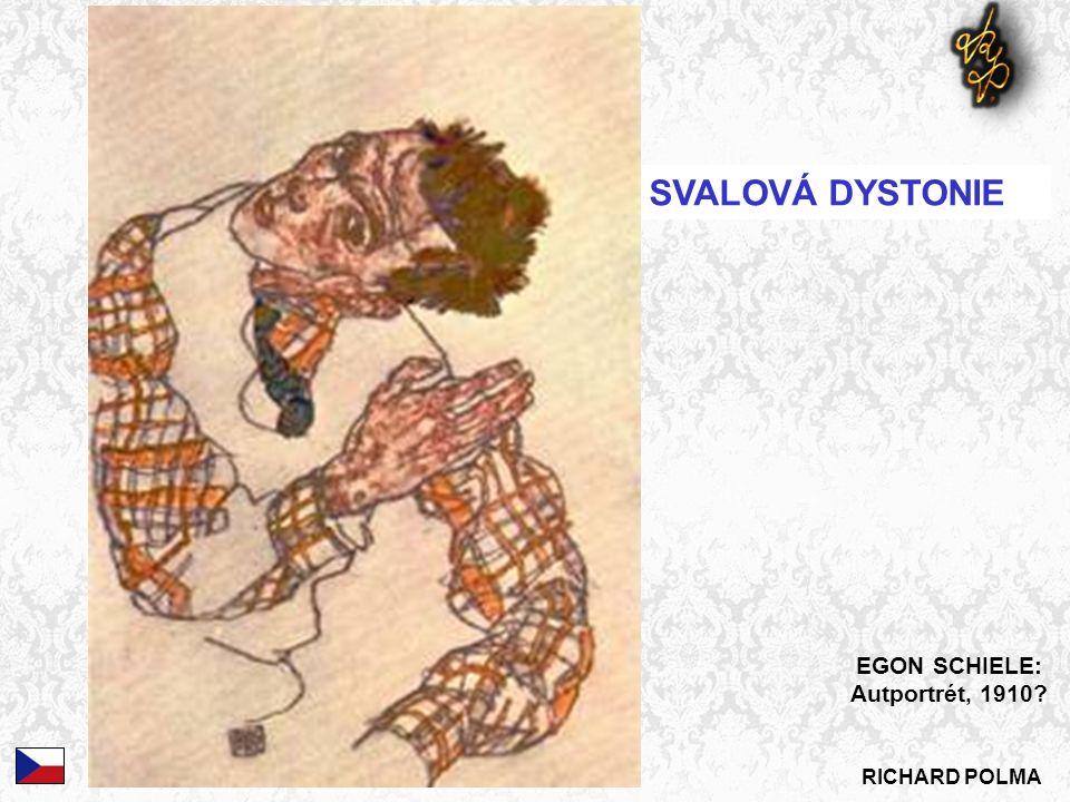 RICHARD POLMA SVALOVÁ DYSTONIE EGON SCHIELE: Autportrét, 1910