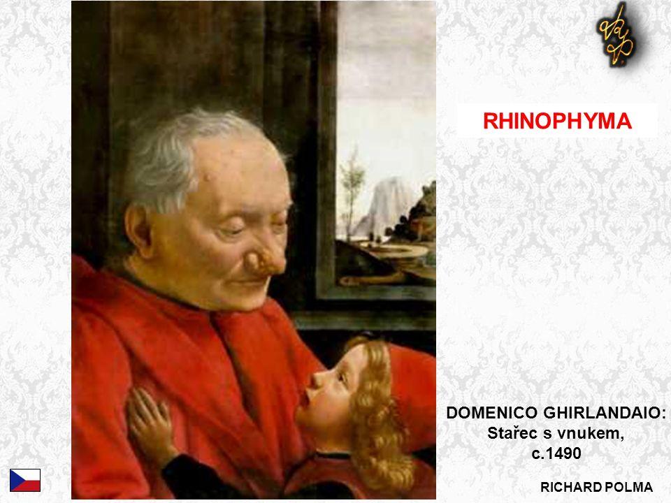 RICHARD POLMA RHINOPHYMA DOMENICO GHIRLANDAIO: Stařec s vnukem, c.1490