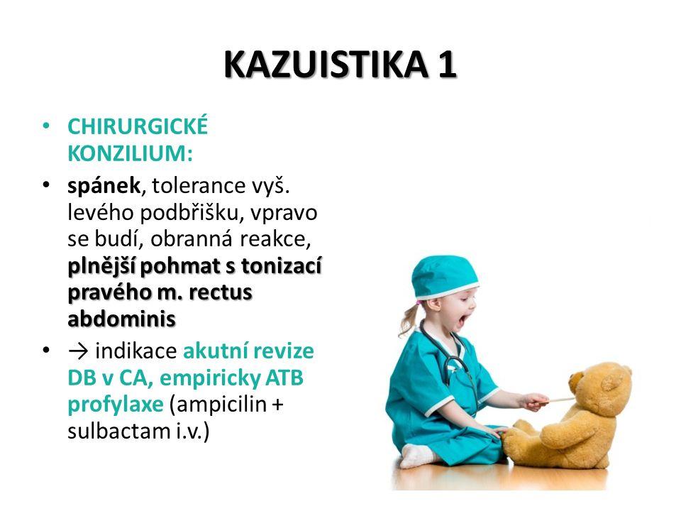 KAZUISTIKA 1 CHIRURGICKÉ KONZILIUM: plnější pohmat s tonizací pravého m. rectus abdominis spánek, tolerance vyš. levého podbřišku, vpravo se budí, obr