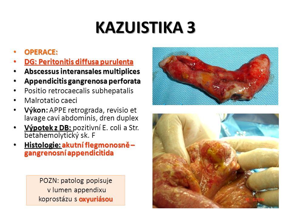 KAZUISTIKA 3 OPERACE: OPERACE: DG: Peritonitis diffusa purulenta DG: Peritonitis diffusa purulenta Abscessus interansales multiplices Abscessus intera