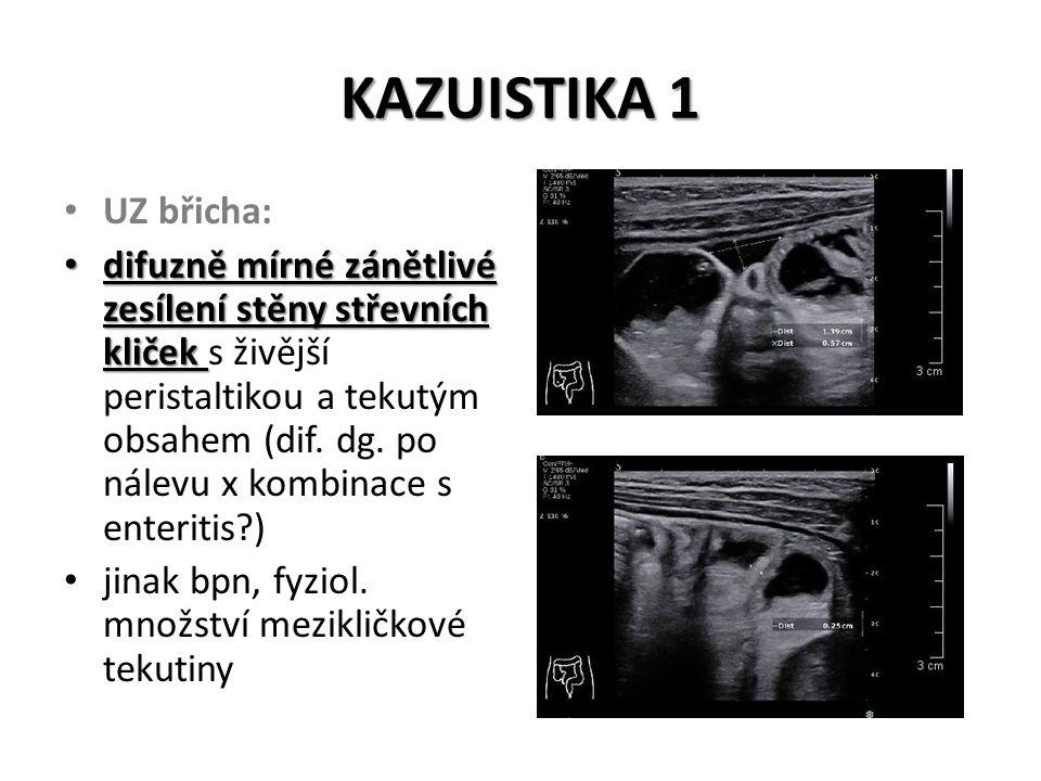 KAZUISTIKA 1 CHIRURGICKÉ KONZILIUM: plnější pohmat s tonizací pravého m.