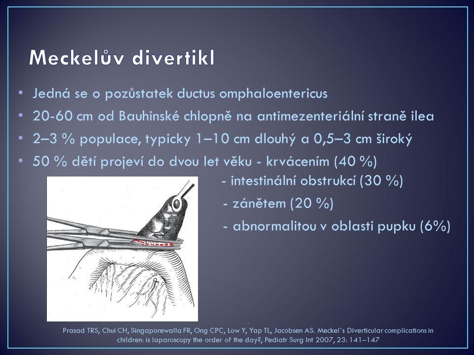 Jedná se o pozůstatek ductus omphaloentericus 20-60 cm od Bauhinské chlopně na antimezenteriální straně ilea 2–3 % populace, typicky 1–10 cm dlouhý a 0,5–3 cm široký 50 % dětí projeví do dvou let věku - krvácením (40 %) - intestinální obstrukcí (30 %) - zánětem (20 %) - abnormalitou v oblasti pupku (6%).