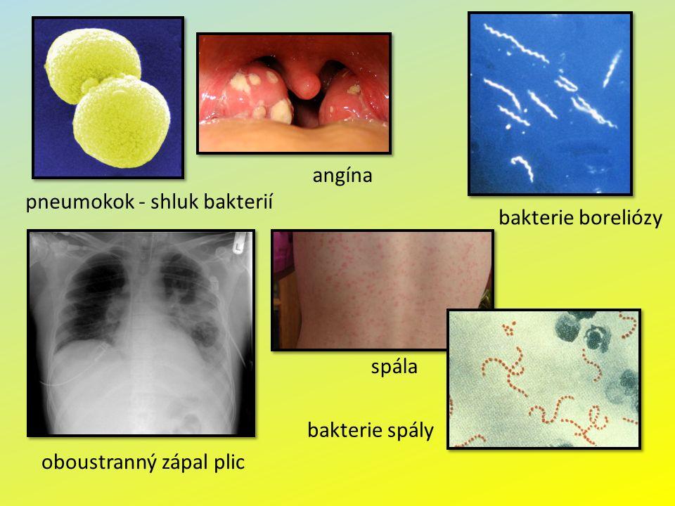 pneumokok - shluk bakterií oboustranný zápal plic bakterie boreliózy spála angína bakterie spály
