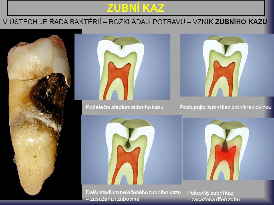 ZUBNÍ KAZ V ÚSTECH JE ŘADA BAKTÉRIÍ – ROZKLÁDAJÍ POTRAVU – VZNIK ZUBNÍHO KAZU Počáteční stadium zubního kazuPostupující zubní kaz pronikl sklovinou Další stadium neléčeného zubního kazu – zasažena i zubovina Pokročilý zubní kaz – zasažena dřeň zubu