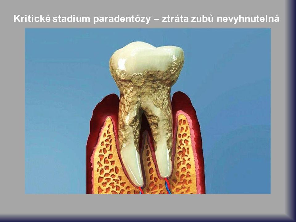 Kritické stadium paradentózy – ztráta zubů nevyhnutelná