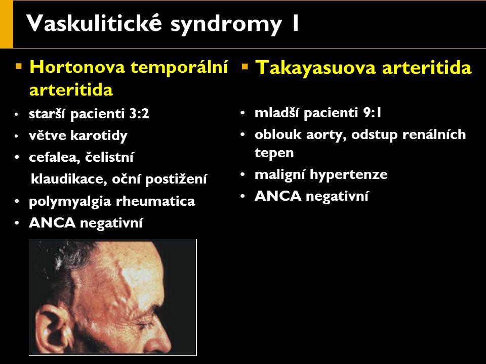 Vaskulitick é syndromy 1  Hortonova temporální arteritida starší pacienti 3:2 větve karotidy cefalea, čelistní klaudikace, oční postižení polymyalgia rheumatica ANCA negativní  Takayasuova arteritida mladší pacienti 9:1 oblouk aorty, odstup renálních tepen maligní hypertenze ANCA negativní