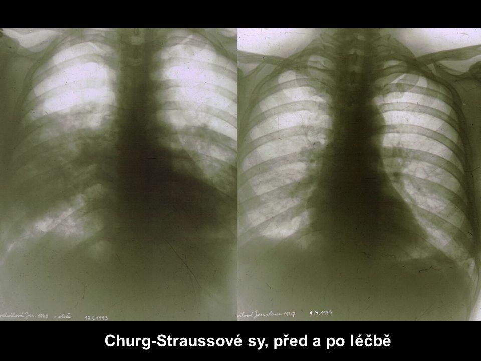 Churg-Straussové sy, před a po léčbě