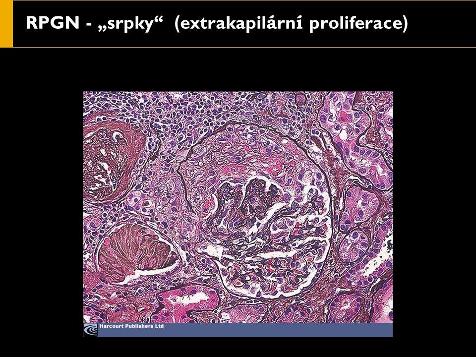 """RPGN - """" srpky ( extrakapil á rn í proliferace )"""