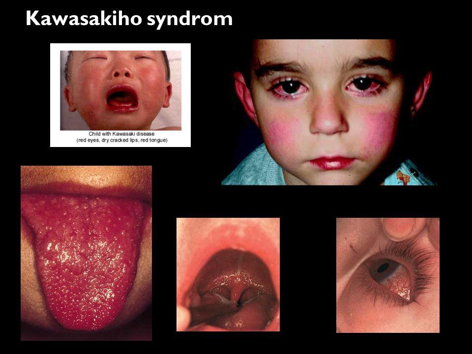 Kawasakiho syndrom
