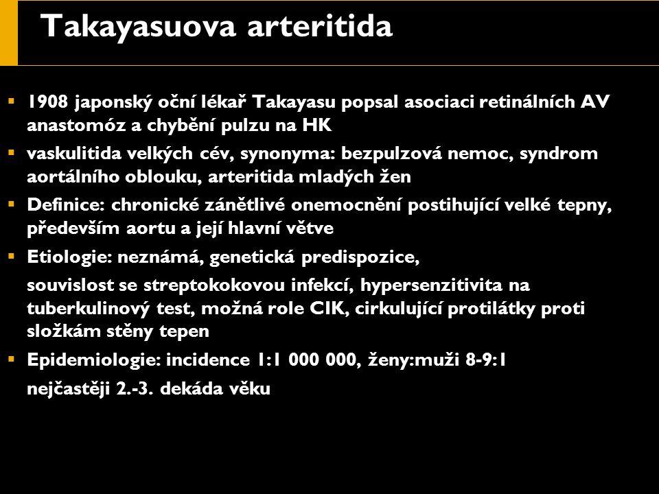 Takayasuova arteritida  1908 japonský oční lékař Takayasu popsal asociaci retinálních AV anastomóz a chybění pulzu na HK  vaskulitida velkých cév, s