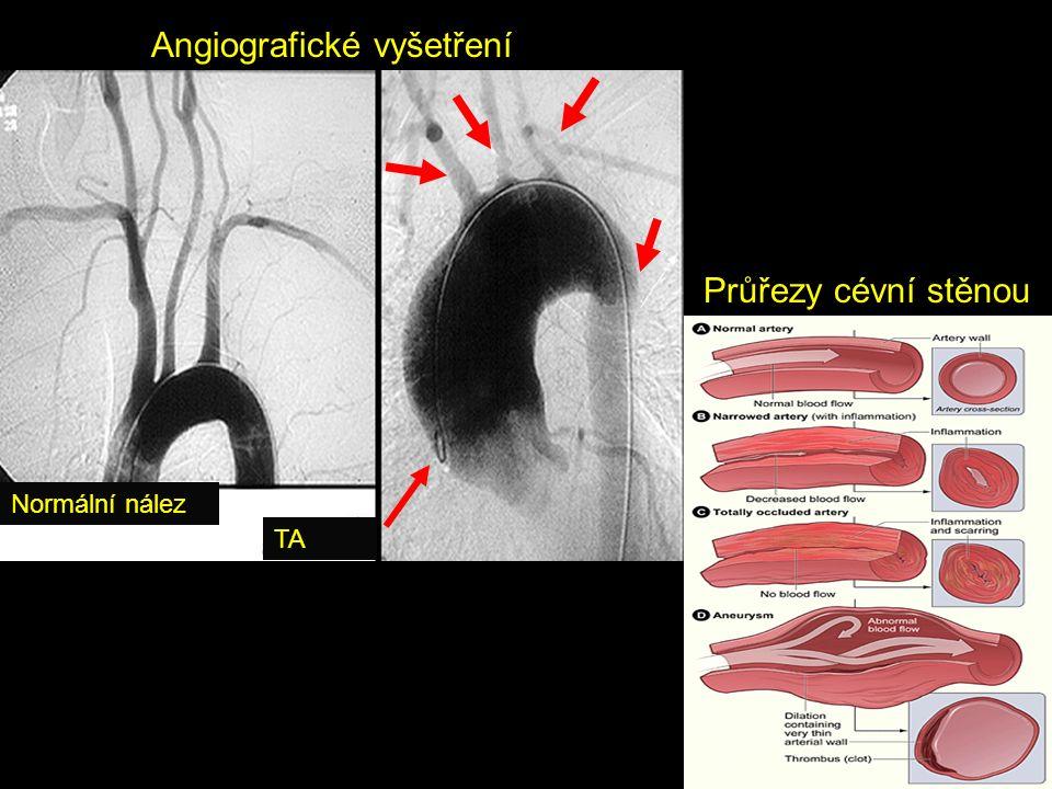 Normální nález TA Angiografické vyšetření Průřezy cévní stěnou