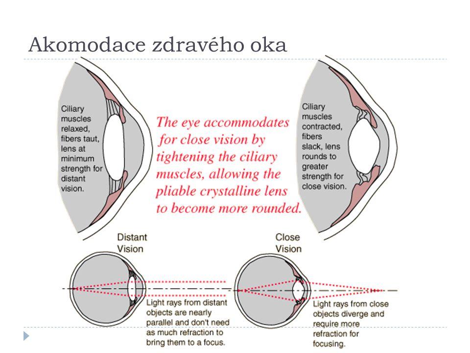 Akomodace zdravého oka