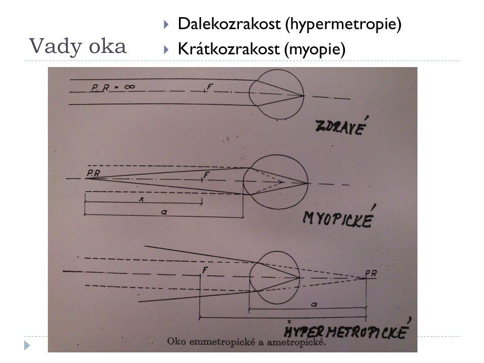 Vady oka  Dalekozrakost (hypermetropie)  Krátkozrakost (myopie)