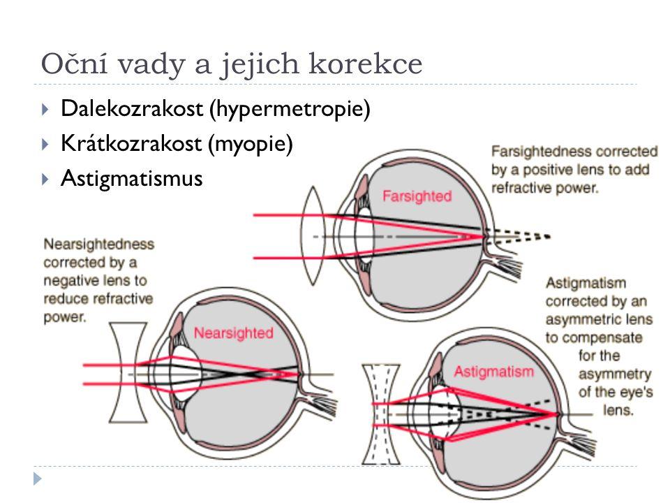 Oční vady a jejich korekce  Dalekozrakost (hypermetropie)  Krátkozrakost (myopie)  Astigmatismus
