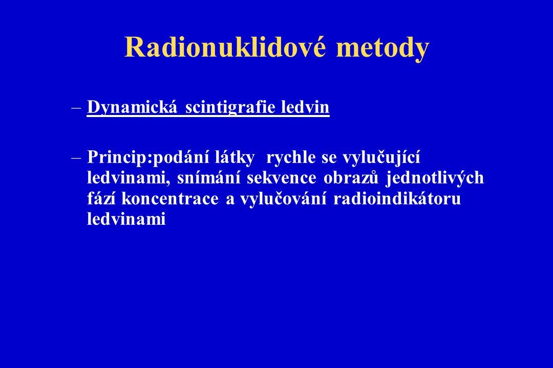 Radionuklidové metody –Dynamická scintigrafie ledvin –Princip:podání látky rychle se vylučující ledvinami, snímání sekvence obrazů jednotlivých fází koncentrace a vylučování radioindikátoru ledvinami
