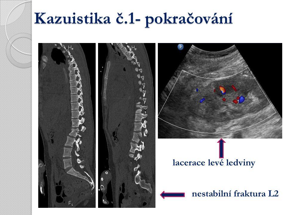 nestabilní fraktura L2 lacerace levé ledviny