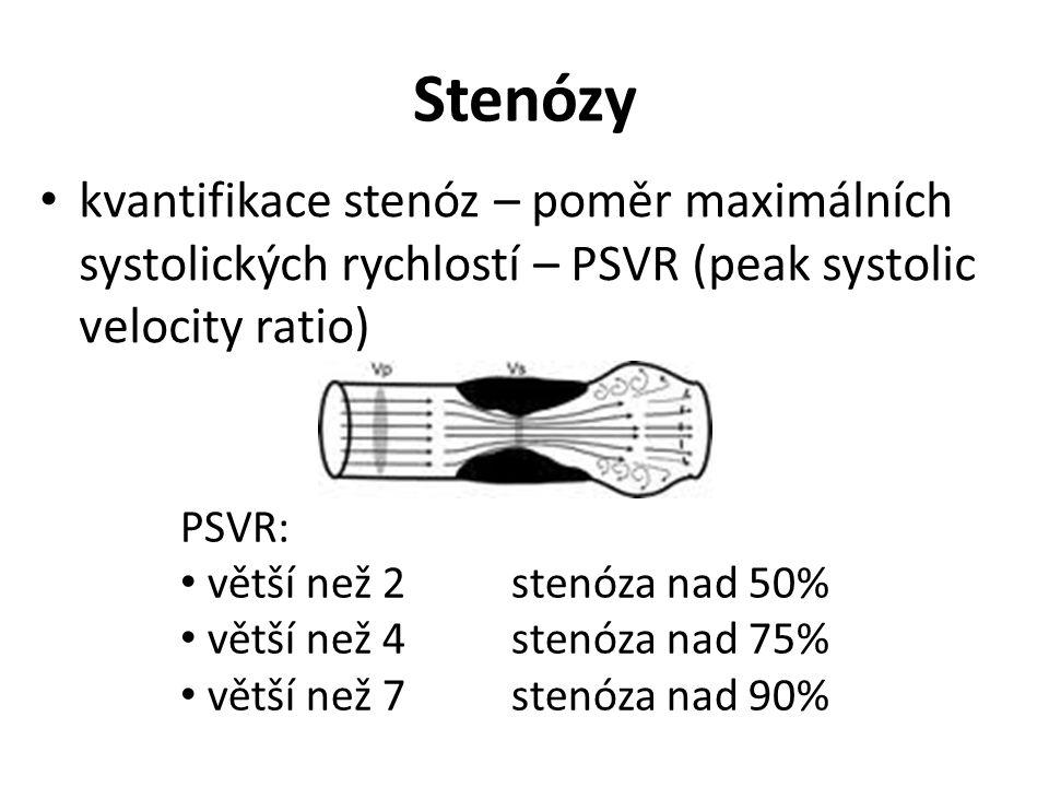 Stenózy kvantifikace stenóz – poměr maximálních systolických rychlostí – PSVR (peak systolic velocity ratio) PSVR: větší než 2 stenóza nad 50% větší než 4 stenóza nad 75% větší než 7 stenóza nad 90%