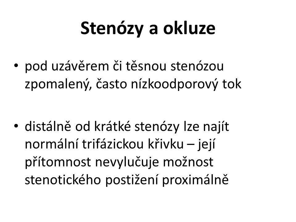Stenózy a okluze pod uzávěrem či těsnou stenózou zpomalený, často nízkoodporový tok distálně od krátké stenózy lze najít normální trifázickou křivku – její přítomnost nevylučuje možnost stenotického postižení proximálně