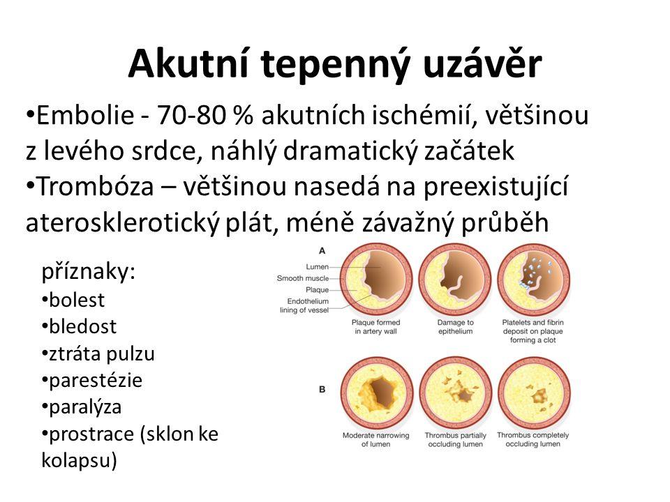 Akutní tepenný uzávěr Embolie - 70-80 % akutních ischémií, většinou z levého srdce, náhlý dramatický začátek Trombóza – většinou nasedá na preexistující aterosklerotický plát, méně závažný průběh příznaky: bolest bledost ztráta pulzu parestézie paralýza prostrace (sklon ke kolapsu)