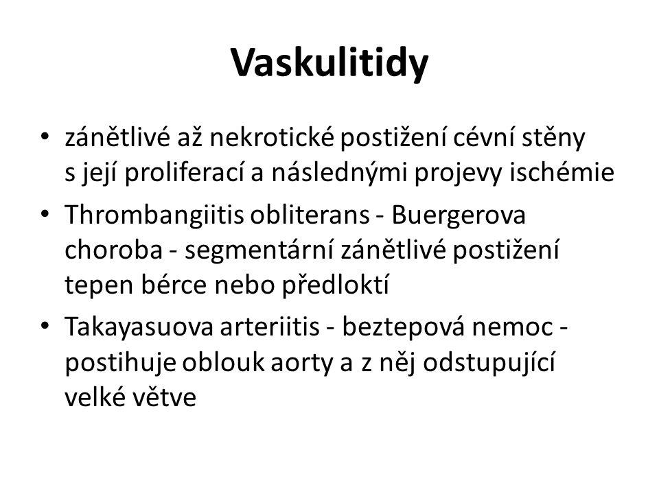 Vaskulitidy zánětlivé až nekrotické postižení cévní stěny s její proliferací a následnými projevy ischémie Thrombangiitis obliterans - Buergerova choroba - segmentární zánětlivé postižení tepen bérce nebo předloktí Takayasuova arteriitis - beztepová nemoc - postihuje oblouk aorty a z něj odstupující velké větve