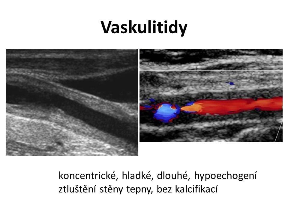 Vaskulitidy koncentrické, hladké, dlouhé, hypoechogení ztluštění stěny tepny, bez kalcifikací