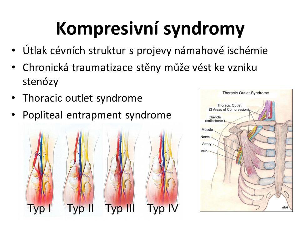 Kompresivní syndromy Útlak cévních struktur s projevy námahové ischémie Chronická traumatizace stěny může vést ke vzniku stenózy Thoracic outlet syndrome Popliteal entrapment syndrome