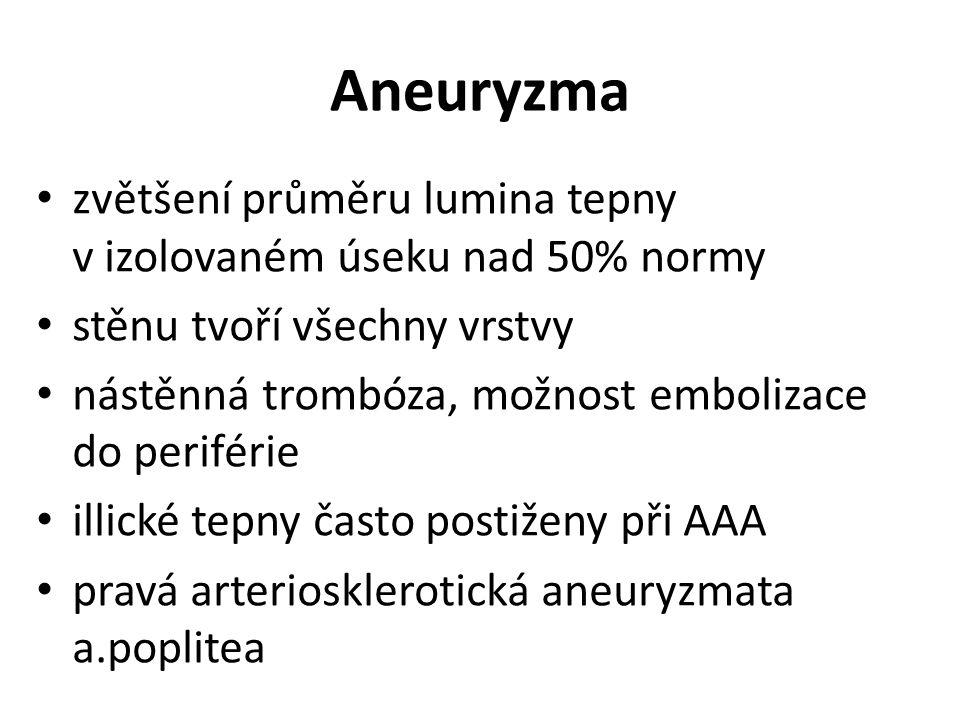 Aneuryzma zvětšení průměru lumina tepny v izolovaném úseku nad 50% normy stěnu tvoří všechny vrstvy nástěnná trombóza, možnost embolizace do periférie illické tepny často postiženy při AAA pravá arteriosklerotická aneuryzmata a.poplitea
