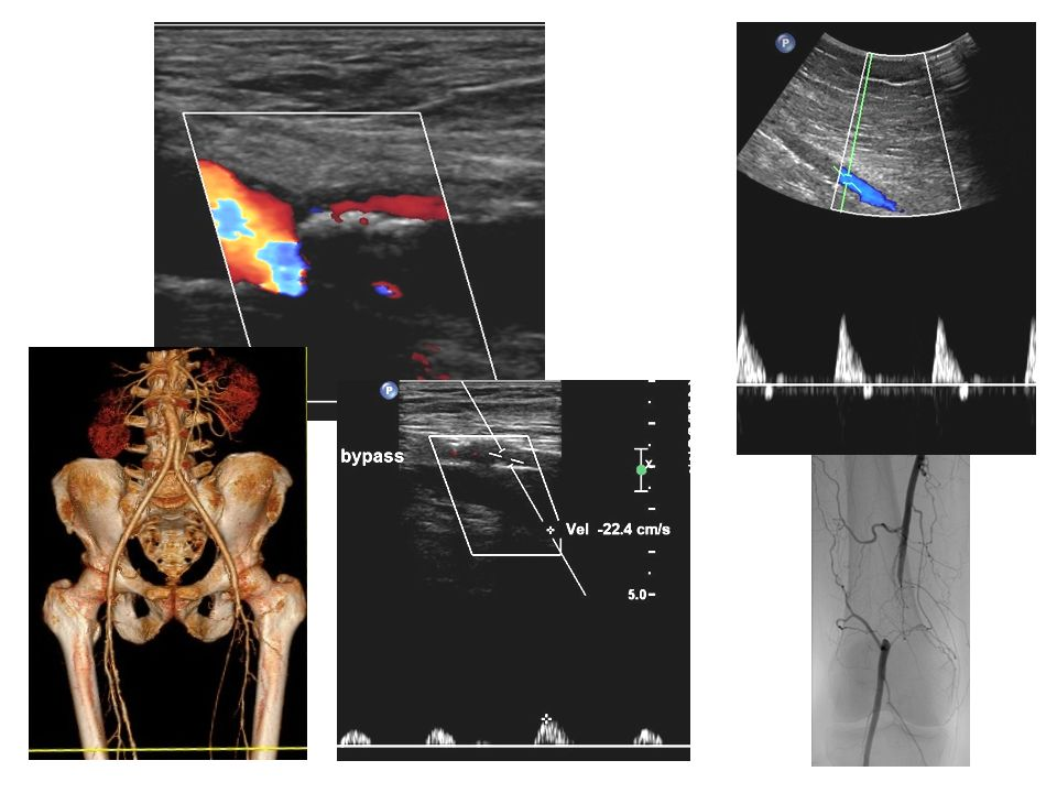 Kontrastní UZ Giannini M., Almeida Rollo H., Bonetti Yoshida W., Lastória S.: Value of ultrasonographic contrast in duplex scanning of leg arteries: Comparison with conventional duplex scanning and arteriography.