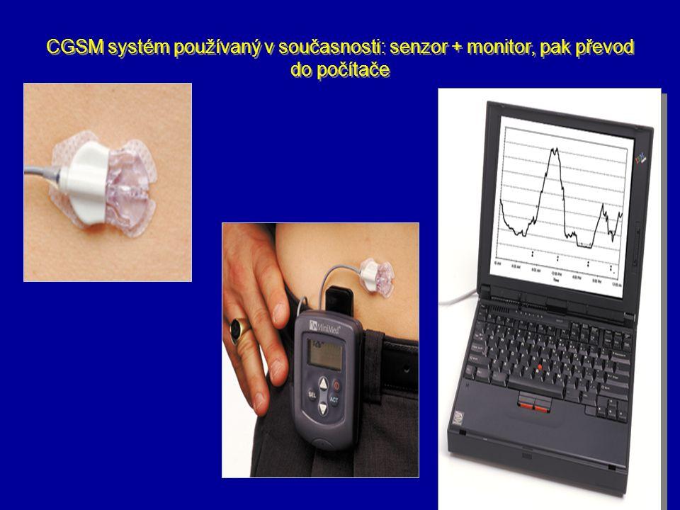 CGSM systém používaný v současnosti: senzor + monitor, pak převod do počítače