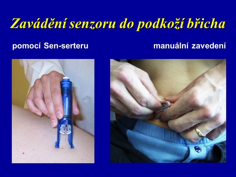 Zavádění senzoru do podkoží břicha pomocí Sen-serterumanuální zavedení
