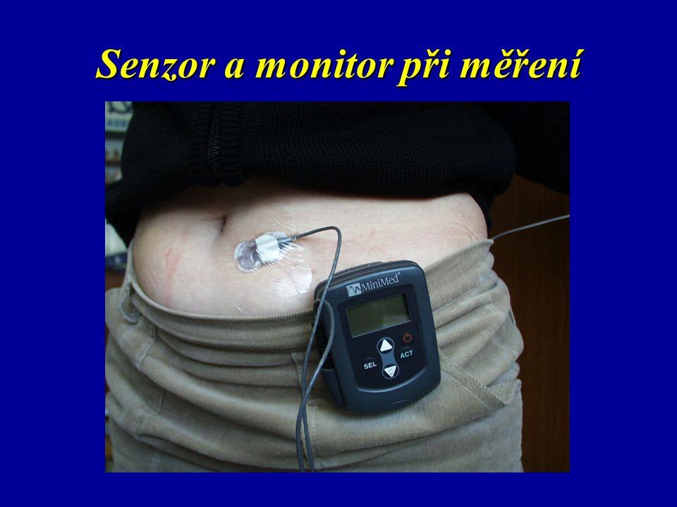 Senzor a monitor při měření