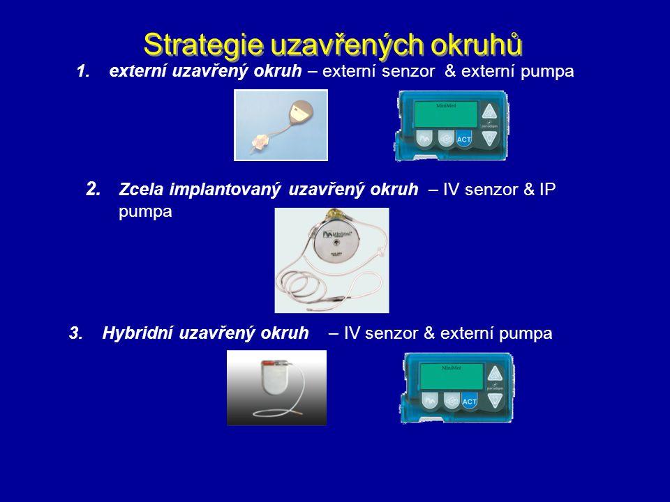 Strategie uzavřených okruhů 1.externí uzavřený okruh – externí senzor & externí pumpa 2. Zcela implantovaný uzavřený okruh – IV senzor & IP pumpa 3.Hy