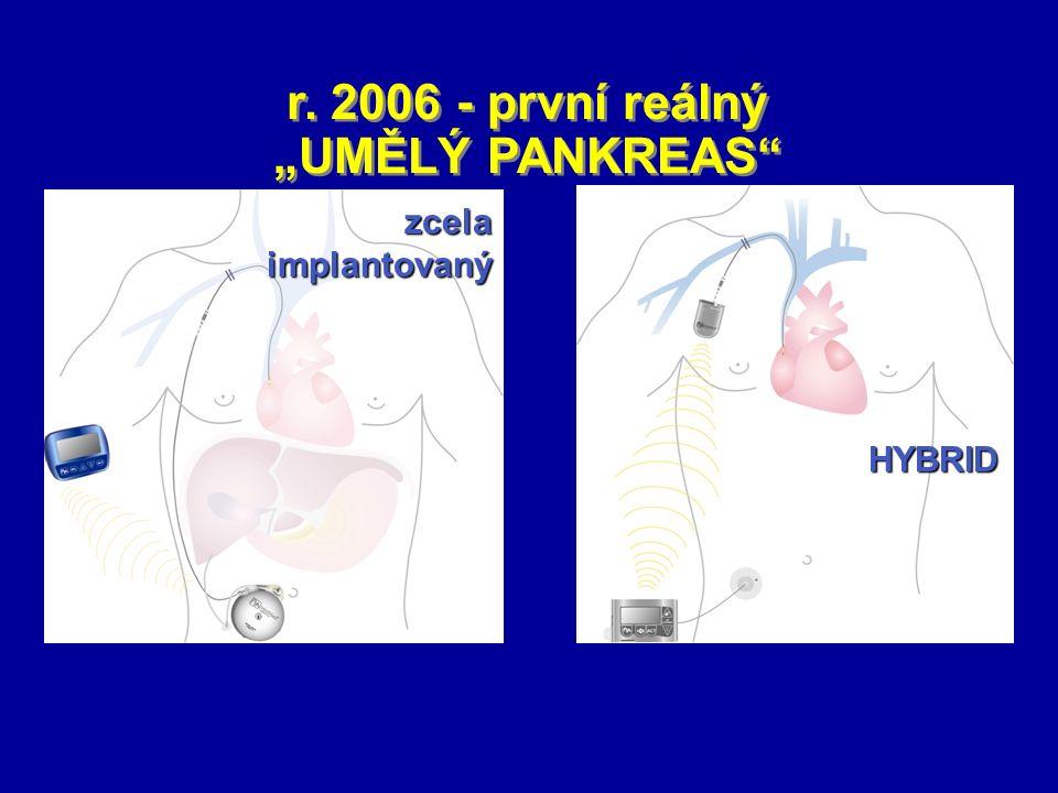 "r. 2006 - první reálný ""UMĚLÝ PANKREAS"" zcela implantovaný HYBRID"