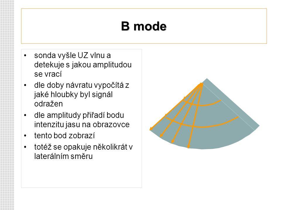 B mode sonda vyšle UZ vlnu a detekuje s jakou amplitudou se vrací dle doby návratu vypočítá z jaké hloubky byl signál odražen dle amplitudy přiřadí bo