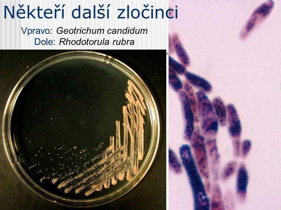 Rod Candida 3 Základem diagnostiky je kultivace.