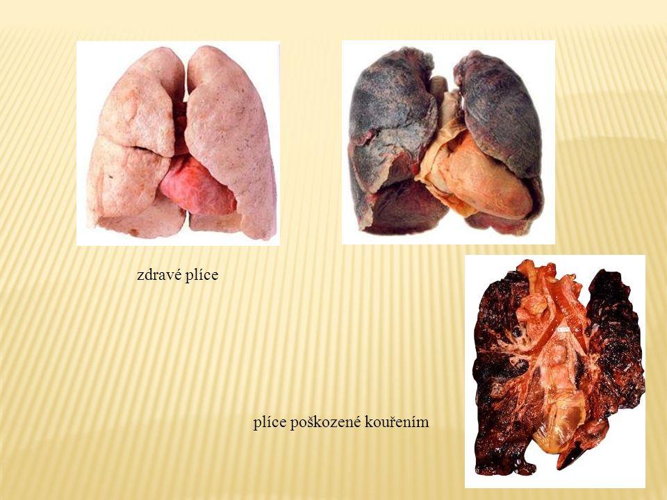 plíce poškozené kouřením zdravé plíce
