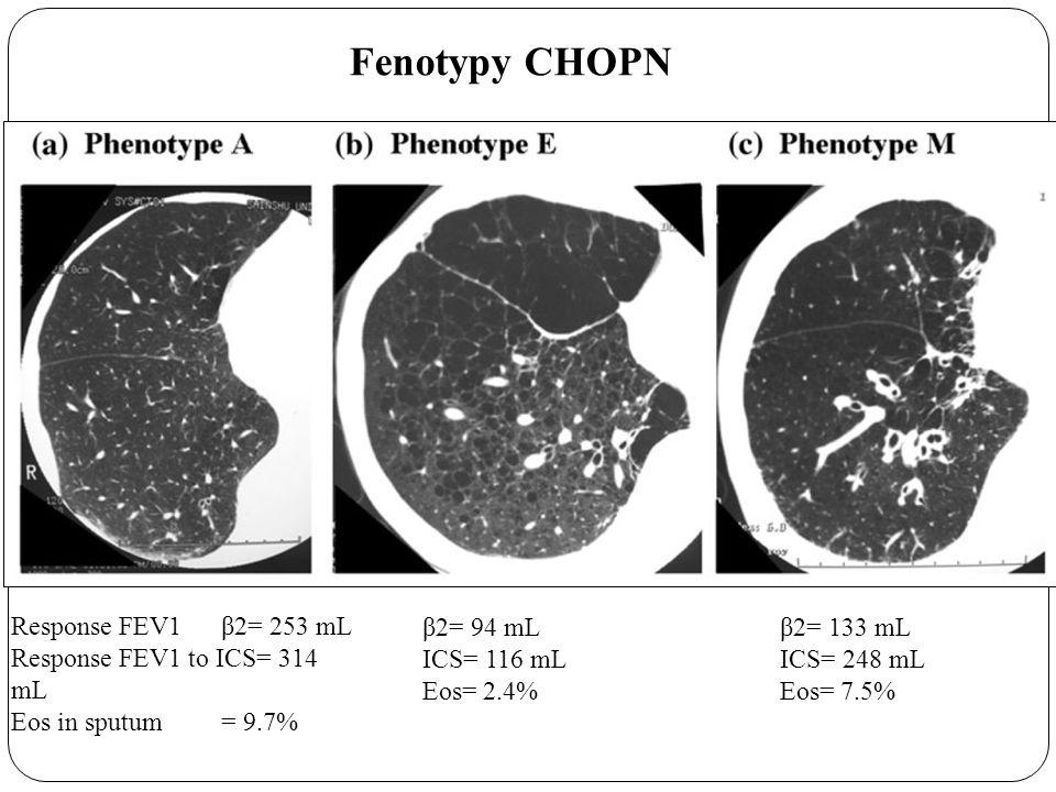 Fenotypy CHOPN Response FEV1 β2= 253 mL Response FEV1 to ICS= 314 mL Eos in sputum = 9.7% β2= 94 mL ICS= 116 mL Eos= 2.4% β2= 133 mL ICS= 248 mL Eos= 7.5%
