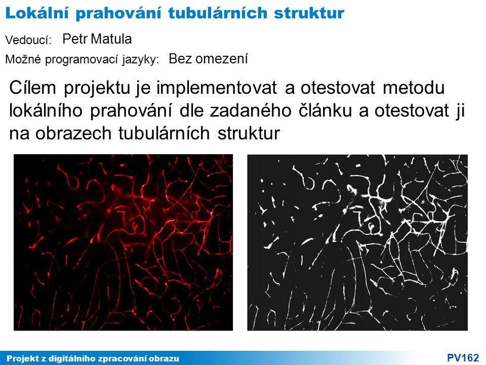Projekt z digitálního zpracování obrazu PV162 Vedoucí: Možné programovací jazyky: Lokální prahování tubulárních struktur Cílem projektu je implementov
