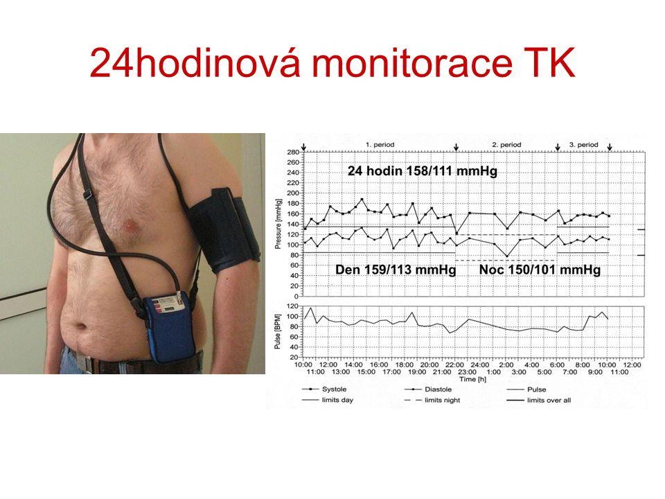24hodinová monitorace TK