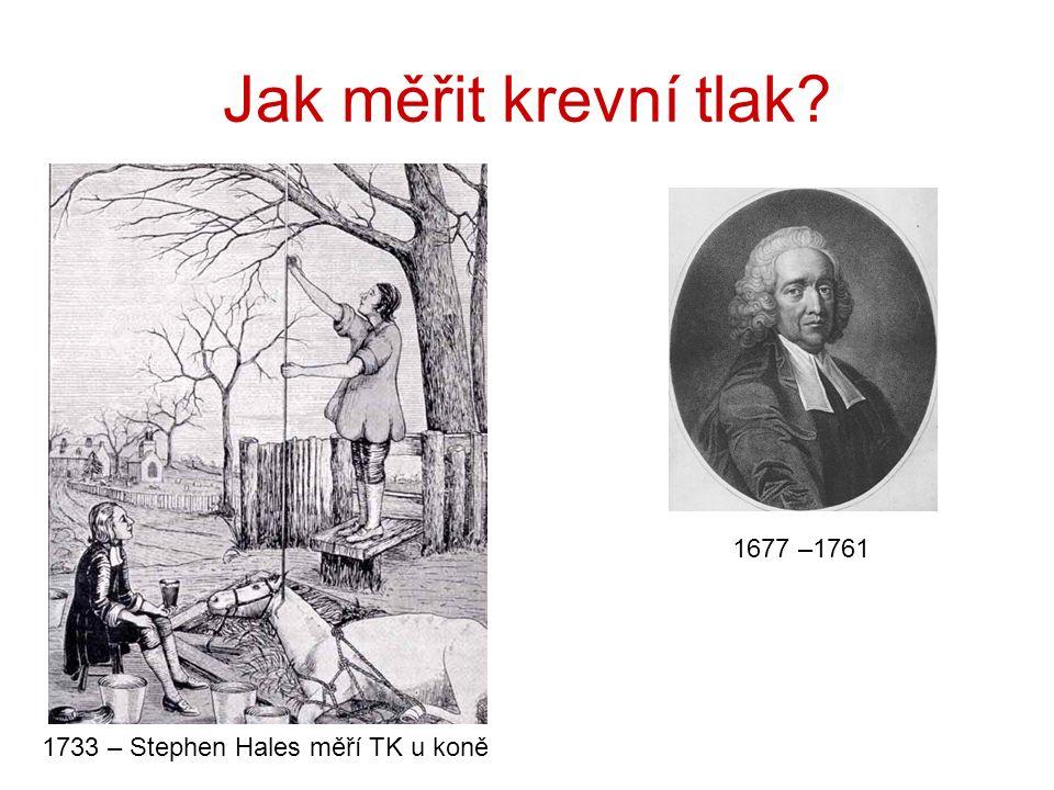 Jak měřit krevní tlak 1733 – Stephen Hales měří TK u koně 1677 –1761