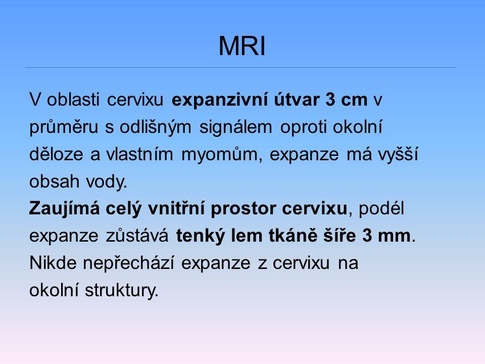 MRI V oblasti cervixu expanzivní útvar 3 cm v průměru s odlišným signálem oproti okolní děloze a vlastním myomům, expanze má vyšší obsah vody. Zaujímá