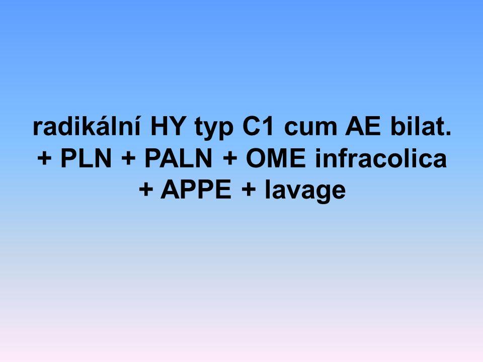 radikální HY typ C1 cum AE bilat. + PLN + PALN + OME infracolica + APPE + lavage